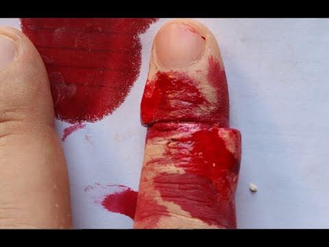 afskåret finger