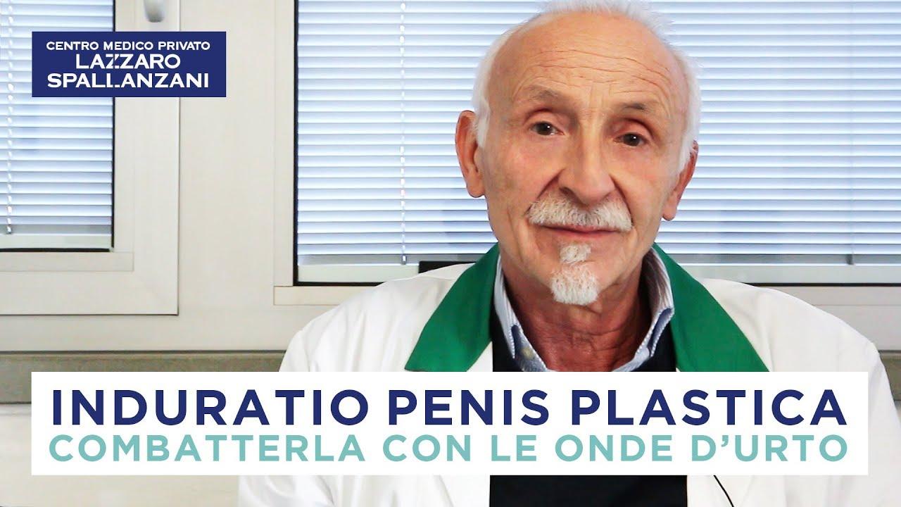 disfunzione sessuale beneficio terapeutico della pentossifillina per la malattia di peyronie