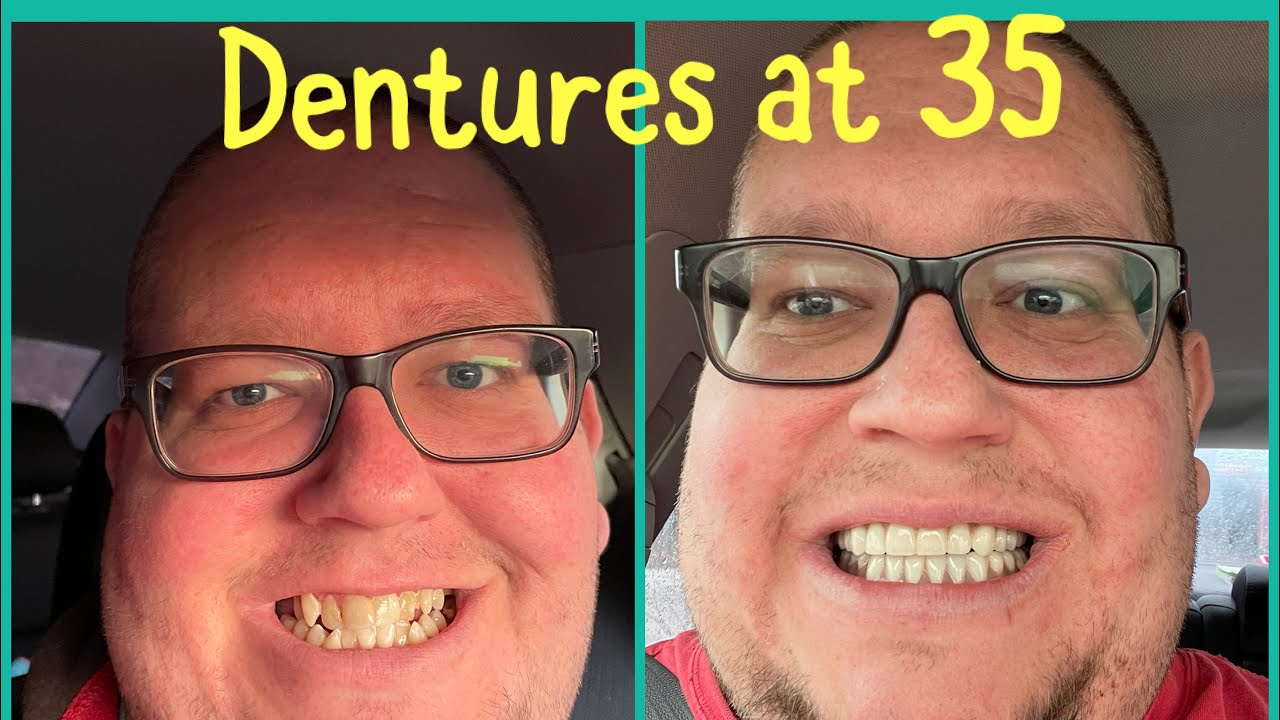 Download Extraction day and Immediate dentures. 24 teeth pulled while awake. Dentures at 35