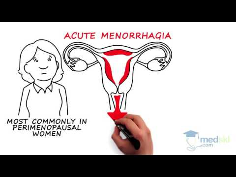 Obstetrics and Gynecology – Abnormal Vaginal Bleeding: By Kate Pulman M.D.