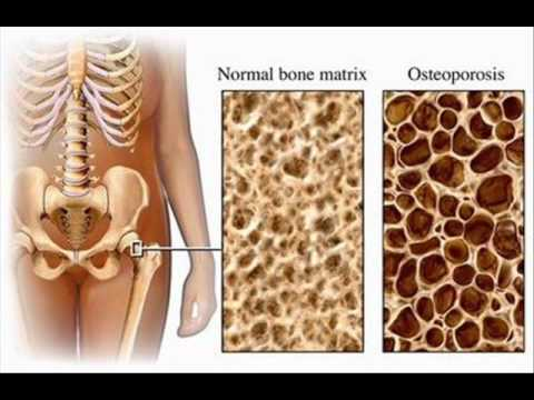 HIP BONE FRACTURE AND ANTACIDS TREATMENT , HEALTH EDUCATION , ICSP , URDU / HINDI