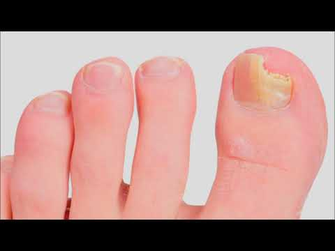 It Works ! 3 Methods to Kill Nail Fungus with Bleach