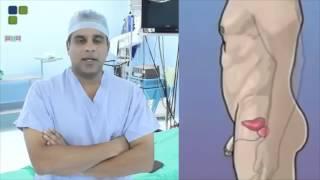 Dr. Rubén Ureña - Cistoscopia