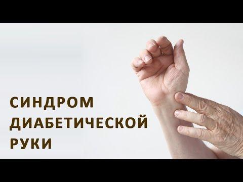 Диабетическая хайропатия (синдром диабетической руки)