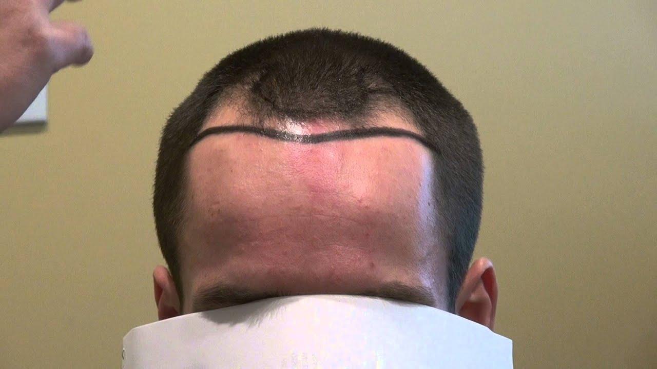 Hair Transplant Surgery Lowering Hairline Receding Temples