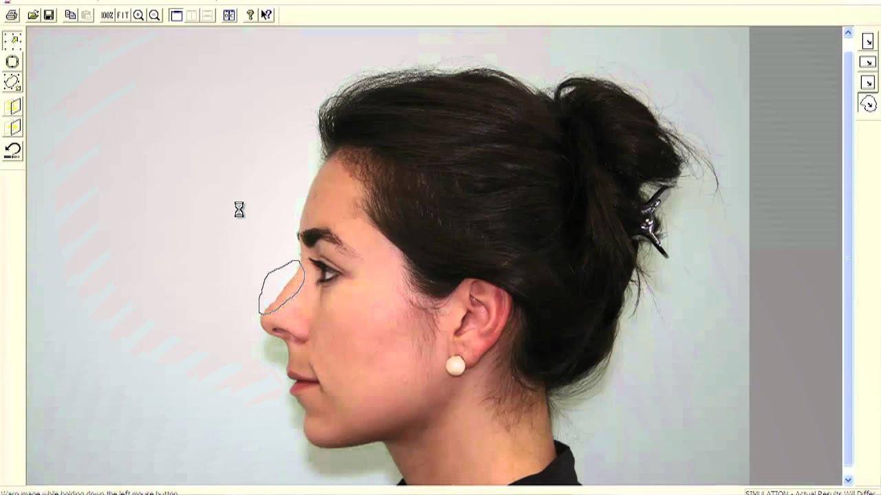 computer imaging case study 1 hump reduction | rhinoplasty