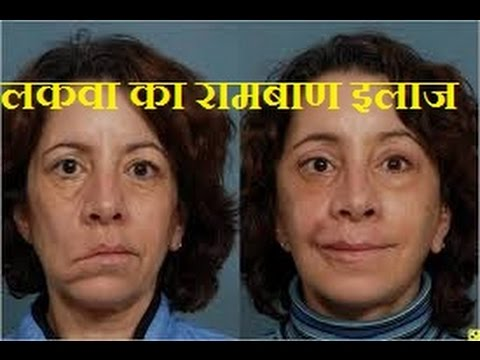 Image result for लकवे के रोगी