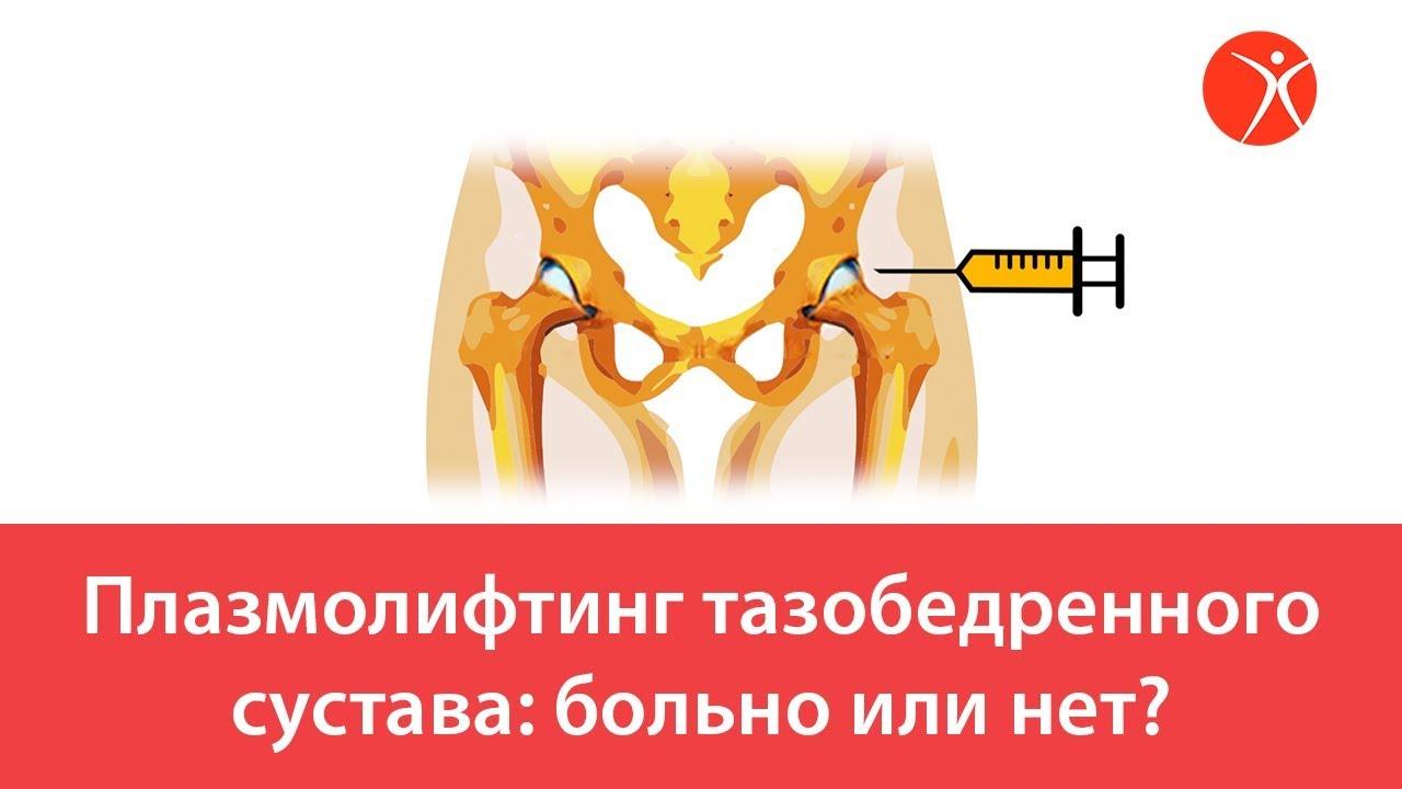 Плазмолифтинг тазобедренного сустава. Видео