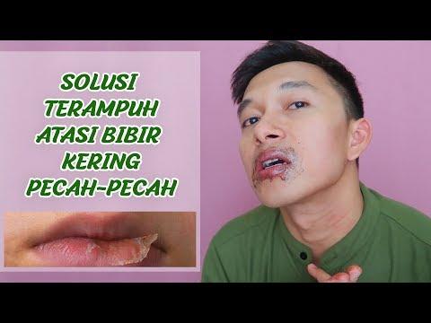 Cara Mengobati Bibir Pecah dan Bibir Bruntusan - My True Story Hai beeb. Video kali ini aku mau berb.