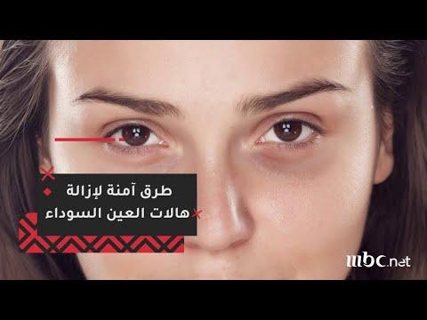 تعرفي على أكثر الطرق الآمنة لإزالة هالات العين السوداء