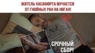 Житель Хасавюрта мучается от гнойных ран на ногах!