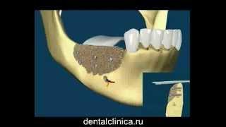 Лечение зубов красивая улыбка виниры коронки протезирование имплантация приятные цены(, 2014-03-25T19:50:01.000Z)