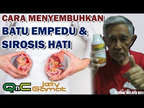 cara-pengobatan-sirosis-hati-dan-batu-empedu-secara-alami,-langsung-sembuh-dan-sehat-kembali