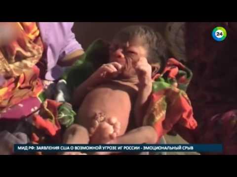 В Бангладеш родился младенец с лицом 80 летнего старика