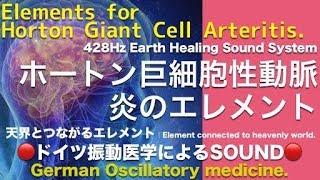 🔴ドイツ振動医学によるホートン巨細胞性動脈炎編|Horton Giant Cell Arteritis by German Oscillatory Medicine.