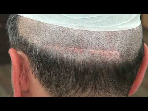 Head Scar From FUT Hair Transplant Surgery Bald Hair Loss Option Dr. Diep http://www.mhtaclinic.com