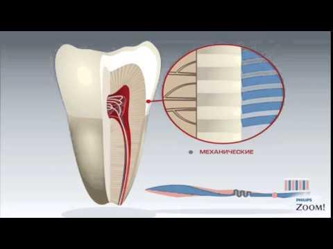 Деминерализация эмали зубов и Глубокое фторирование для защиты зубов