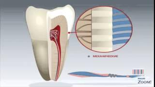 Деминерализация эмали зубов и Глубокое фторирование для защиты зубов(, 2015-05-15T07:14:01.000Z)