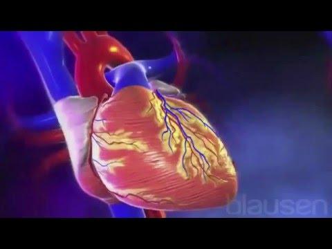 Accidentul vascular cerebral (AVC)