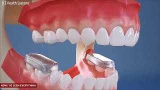 Begini cara kerja kawat gigi