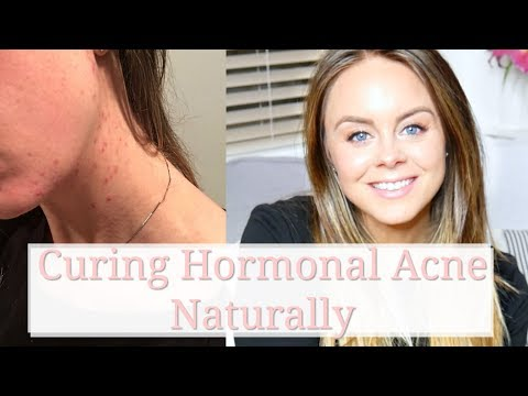 hormonal-acne-+-coming-off-the-pill:-curing-hormonal-acne-without-accutane