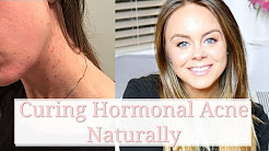 hqdefault - How To Cure Hormonal Acne Without Birth Control