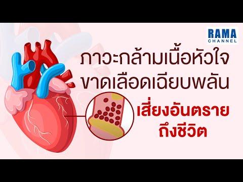 ภาวะกล้ามเนื้อหัวใจขาดเลือดเฉียบพลัน