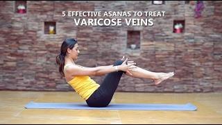 exerciții de yogan în varicoză