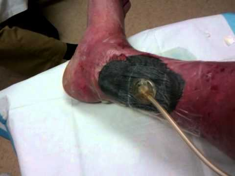 wound vac dressing change 2 of 2 youtube