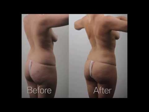 Liposuction Before and After - Results of Liposuction Cosmetic Surgery