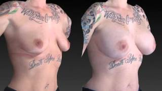 Breast Enhancement 3D Before and After-53