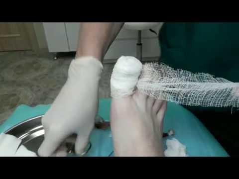 Палец после удаления ногтя болит палец на ноге