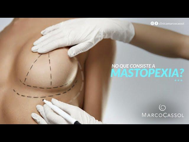 Mastopexia: Saiba tudo sobre o procedimento
