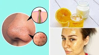I've Spent Hundreds of $$$ on My Skin Care Routine, But Only This Helped Me Remove Blackheads