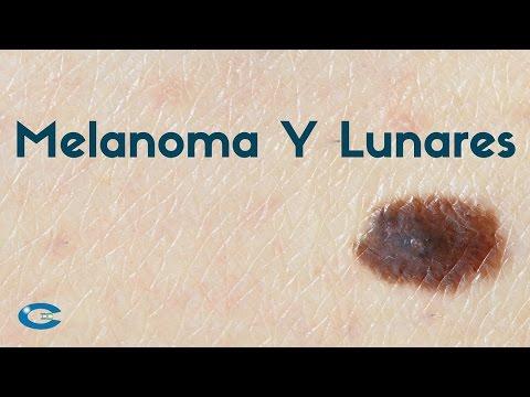 Melanoma y lunares en la piel