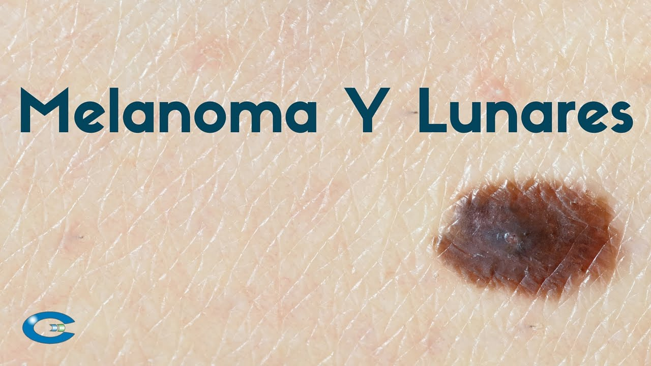 Melanoma y lunares en la piel - YouTube