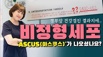자궁경부암 검진결과 비정형세포(ascus 아스쿠스)가 나오셨어요? 추가검사받으시고 치료받으시면 되세요!!! 너무 걱정하시마세요!!!