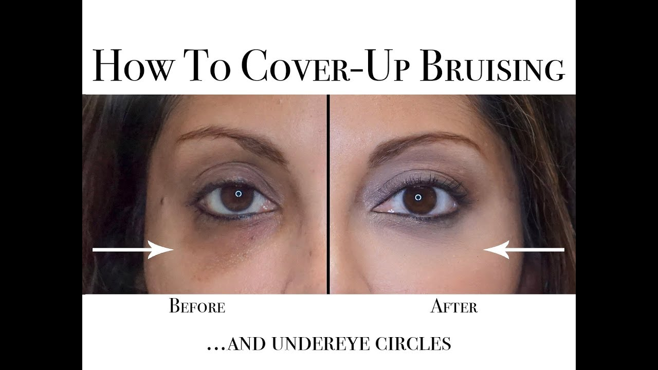 Simple ways to remove bruises under the eye