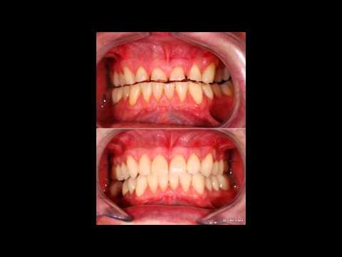 Veneers dentist pretoria