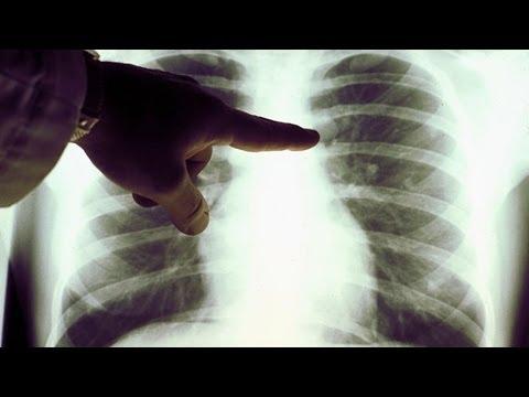 Почему курение вызывает рак легких? Школа здоровья 03/05/2014 GuberniaTV