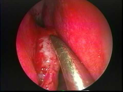 Endoscopic Removal of a Nasal Septal Spur