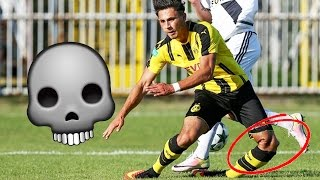 *GRAPHIC CONTENT* WORST INJURIES IN FOOTBALL! (FIFA 17 SQUAD BUILDER)