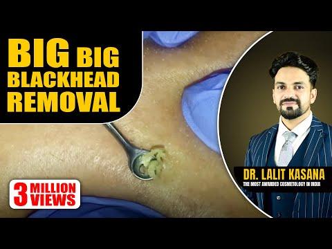 Baixar Removal Blackhead - Download Removal Blackhead   DL