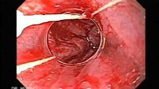 Escleroterapia vs ligadura varicosa