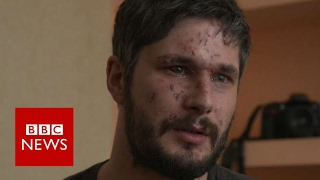 Ukraine  'I checked to see if I had arms and legs'   BBC News