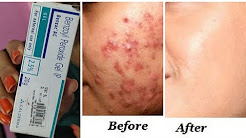 hqdefault - Acne And Pimple Cure Cream