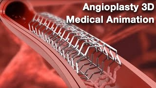 Angioplasty - Medical animation thumbnail