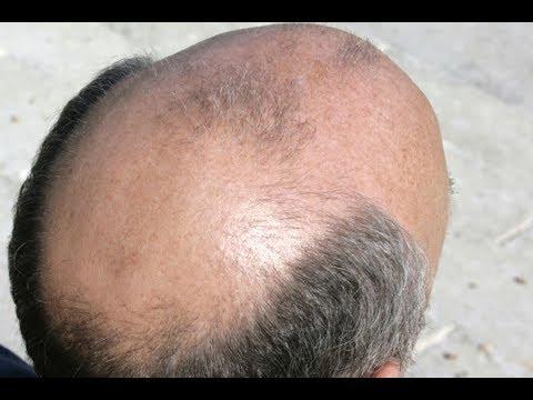 Выпадение волос - основные причины