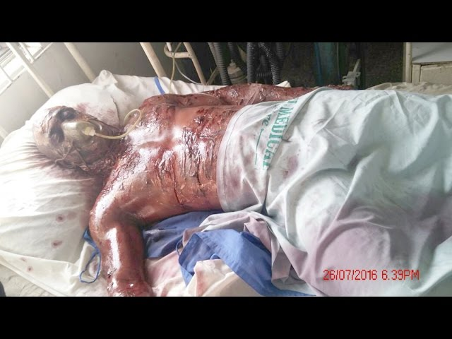 tragedy on nollywood film set - director burns actor with Fire! VID 20160630 WA000