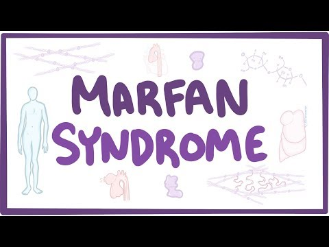 Marfan Syndrome - causes, symptoms, diagnosis, treatment, pathology
